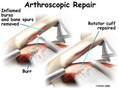 Shoulder Impingement Surgery | Shoulder Impingement