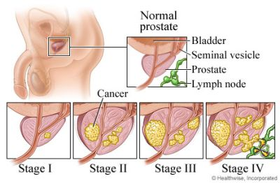 On this page:How does Prostate Cancer start?Risk factors for Prostate CancerSymptoms of Prostate CancerStaging of Prostate CancerTests for Prostate CancerHow is Prostate Cancer Treated?Can Prostate Cancer Be Prevented?Prostate Cancer The prostate is a walnut-sized exocrine gland in men that produces the seminal fluid that nourishes and transports sperm on their journey to fuse with aRead More