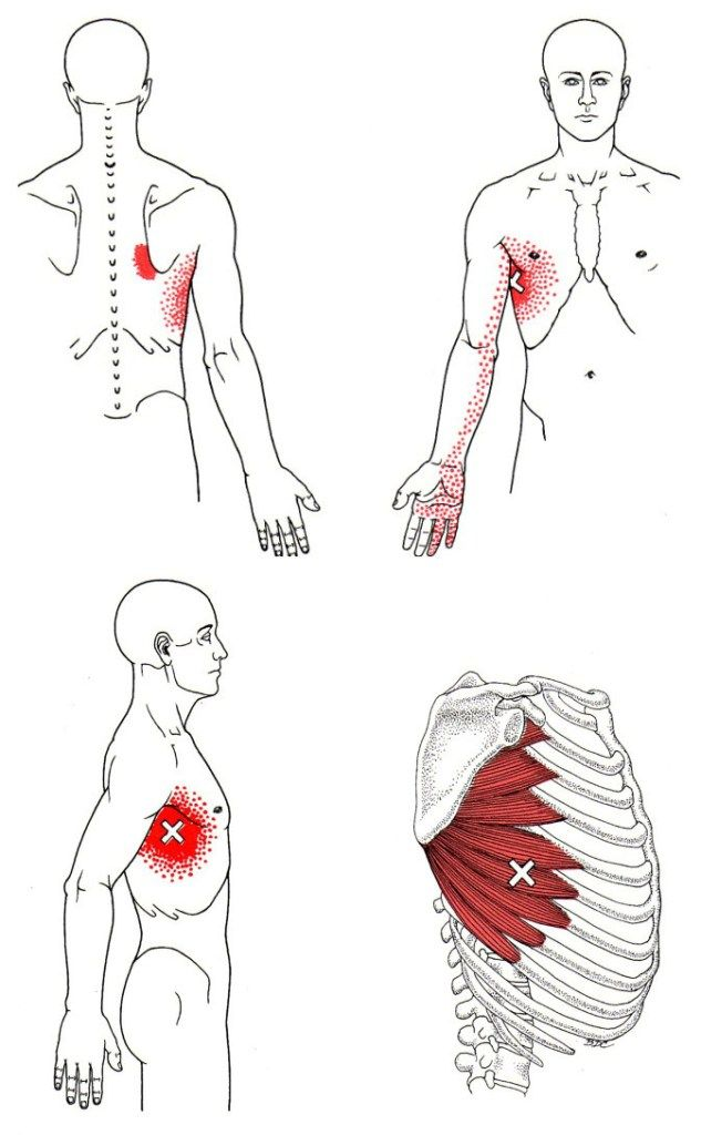 Trigger points of Serratus Anterior, the roundedshoulder muscle | Exercise & Anatomy | Referred