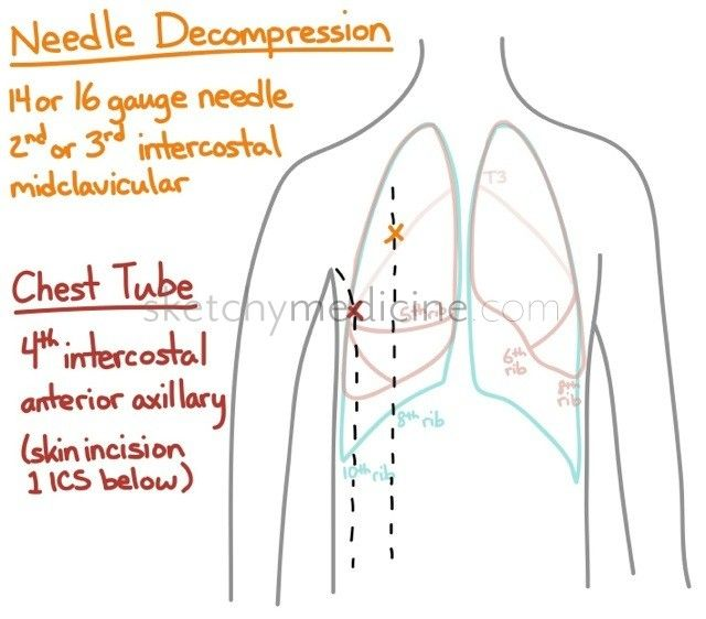 Lung surface anatomy and chest tubes vs needle decompression | Sketchy Medicine