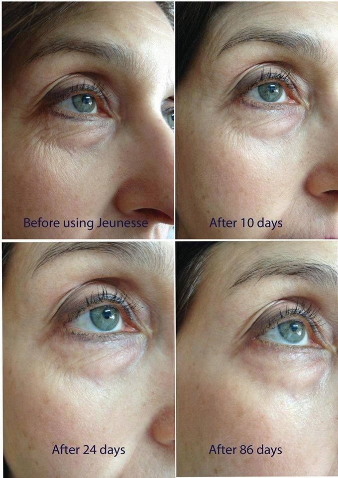 LUMINESCE serum and some of the results. Learn more...