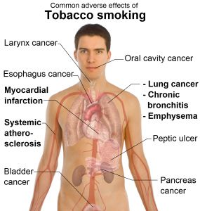 Side effects Of Smoking