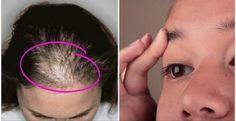 Estas receitas vão fazer seus cabelos e sobrancelhas crescerem mais rápido e com volume | Cura pela Natureza