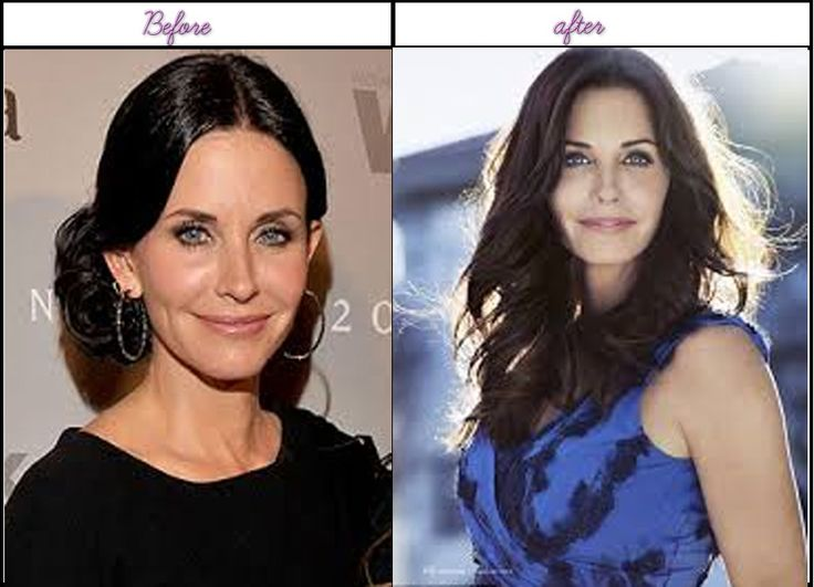 Plastic Surgery After Before Pictures Of Courtney Cox Perfect After Surgery - http://www.afterbeforeplasticsurgery.com/plastic-surgery-after-before-pictures-of-courtney-cox-perfect-after-surgery/