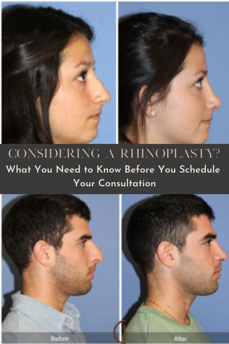 #experienced #considering #rhinoplasty #california…