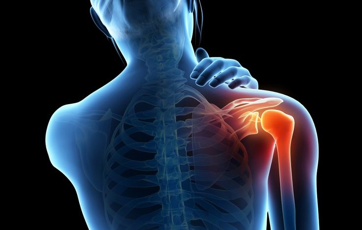 7 Natural Remedies For Joint Pain
