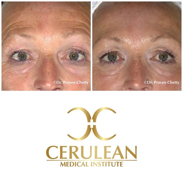 Botox is a fantastic treatment solution to address forehead wrinkles  leaving you with refreshed , rejuvenated appearance. #Botox #BeforeAndAfter #Wrinkles #AntiWrinkle #Rejuvenate #Cosmetic #Dermatology #CeruleanMedicalInstitute #DrPravenChetty #Kelowna #Okanagan