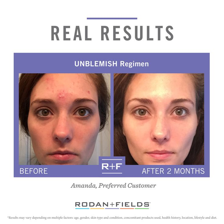 Rodan + Fields Unblemish.  This stuff is a total game changer. alide.myrandf.com