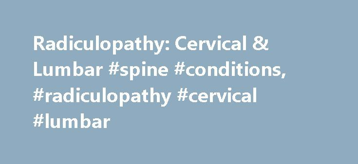 Radiculopathy: Cervical & Lumbar #spine #conditions, #radiculopathy #cervical #lumbar http://rhode-island.remmont.com/radiculopathy-cervical-lumbar-spine-conditions-radiculopathy-cervical-lumbar/  # Radiculopathy: Cervical & Lumbar What You Should Know About Radiculopathy Degeneration of the spine can result in a variety of problem-causing conditions. Usually, they either come from mechanical problems in the neck or from nerves being irritated or pinched. A Cervical Radiculopathy (Pinched…
