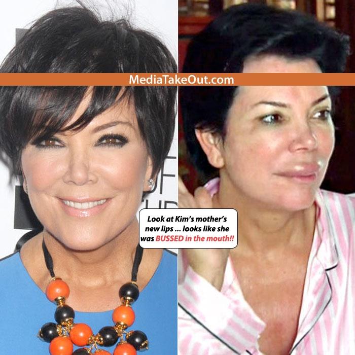 #Kim Kardashian's MOTHER Gets New Lip Injections     #Gossip #Entertainment  #music #rap #drama #trend #news