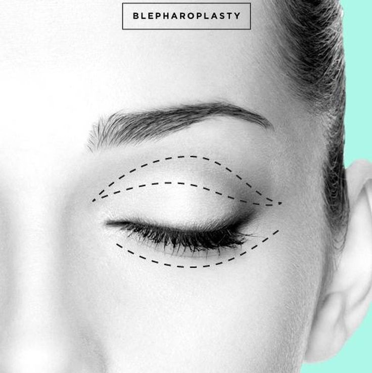 An upper and lower eyelid blepharoplasty is great way to rejuvenate the face and create a more rested appearance. It can also increase your peripheral vision. Call us today to schedule your consult! 585-444-EYES #FacialSurgery #EnvisionROC