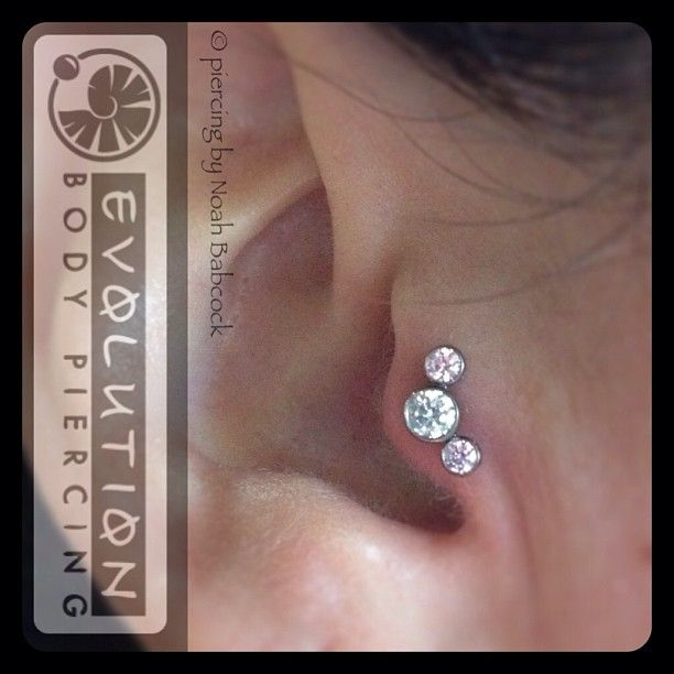 healed tragus piercing with titanium jewelry by anatometal [at Evolution Piercing]