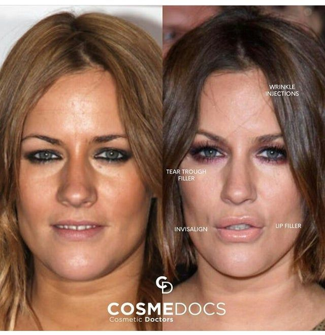 Caroline Flack Atozplasticsurgery Caroline Flack Caroline Flack Style Caroline Jones
