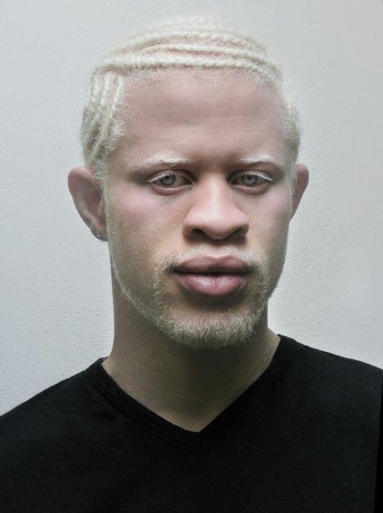 5d7c9169e6daf72599b2c656970bed81--albino