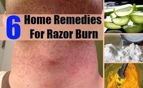 Advise you bikini razor burn remedies have