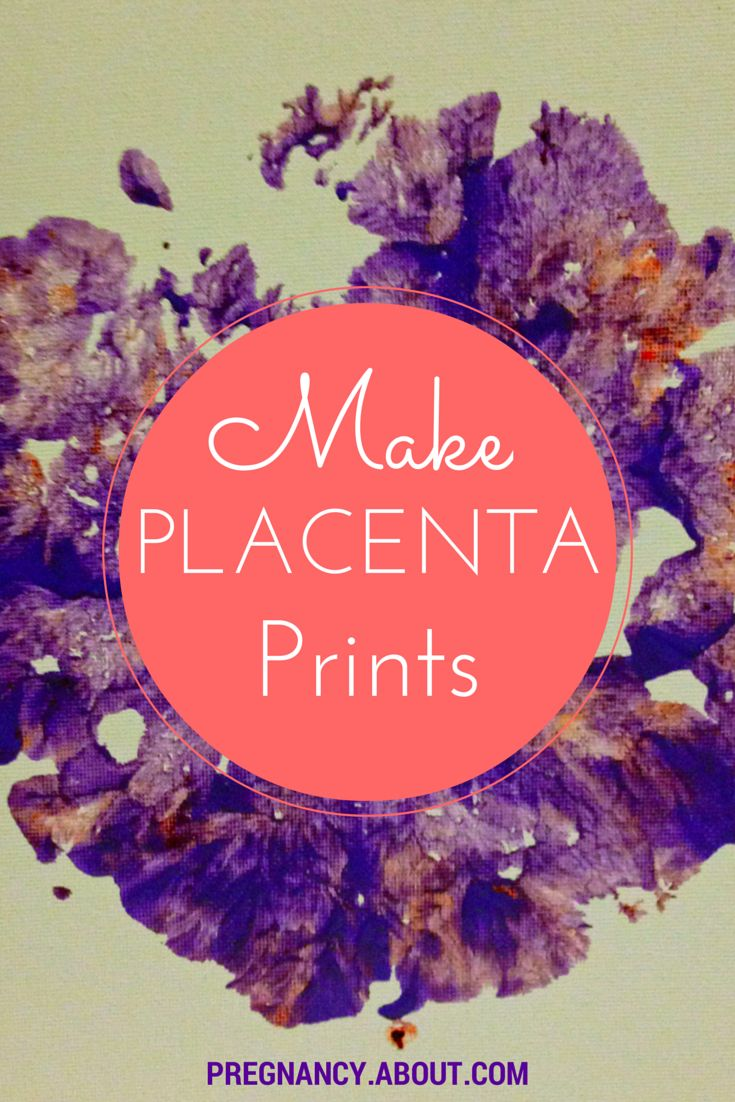 Interested in doing something to commemorate your #placenta this #pregnancy? Consider placenta prints as an art project after you give birth. (HINT: You can make this compatible with encapsulation with certain procedures.)