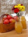 Get Rid of Varicose Veins with Apple Cider Vinegar Treatment