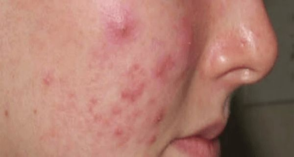 Pimples on the face – a natural cure acne and pimples disappear forever in 14 days