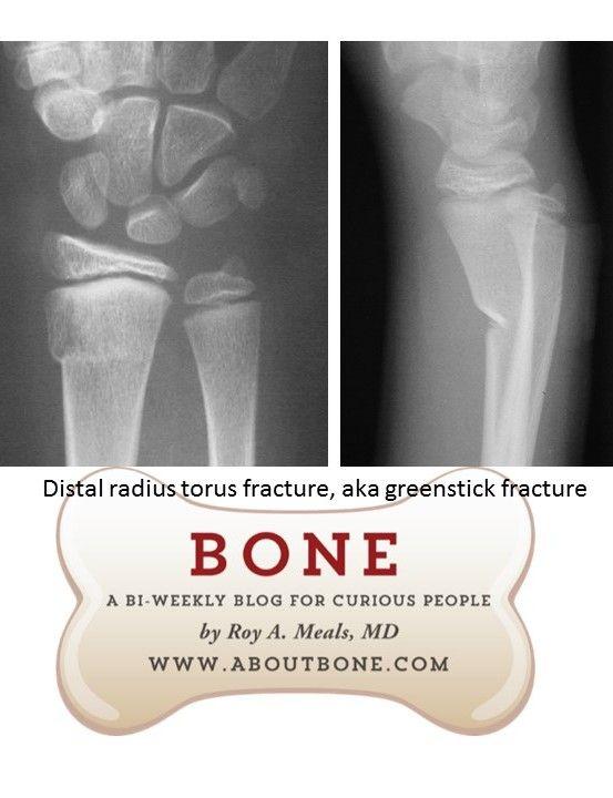 distal radius torus fracture, also known as greenstick break