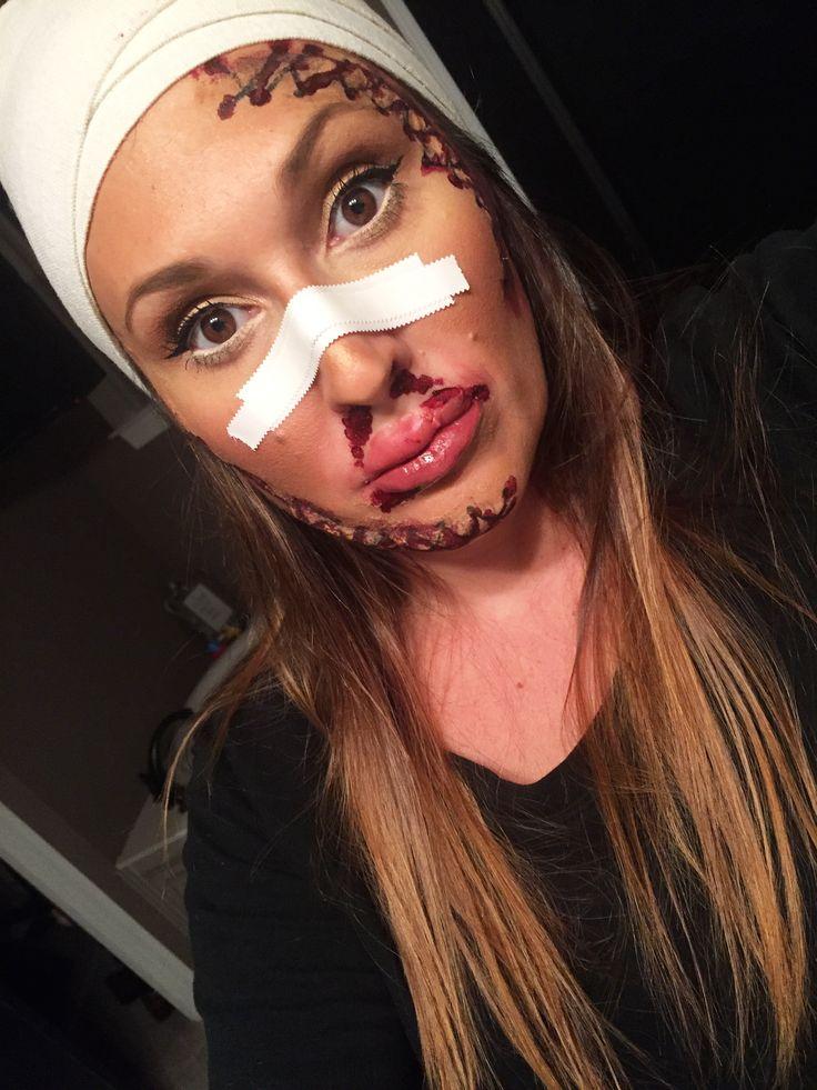 Botched plastic surgery makeup