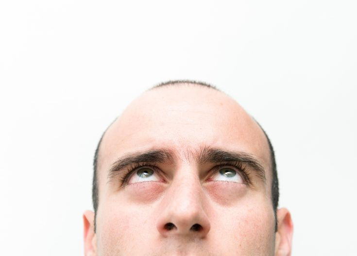 Cure for BALDNESS?