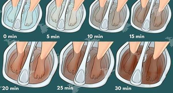 Disintossicare il corpo attraverso i piedi è un semplice metodo per disfarsi delle tossine che si accumulano in esso. Di seguito ti suggeriamo i due migliori metodi per disintossicare il corpo attr…