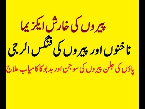 fungas Eczema kharish skin allergy treatment in Urdu|paon ki badboo ka i...