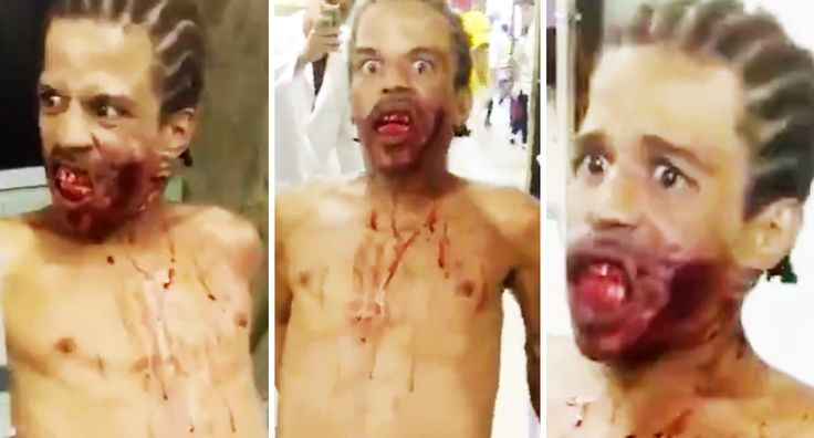 """Real Zombie Caught Attempting To Attack People In Rio Brazil Hospital -      The guy working at the jail wrote: """"WTF? Zombies are real ? Guy arrives with bullet wound to face and apparently possessed by Satan. Another fu... See more at https://www.icetrend.com/real-zombie-caught-attempting-to-attack-people-in-rio-brazil-hospital/"""