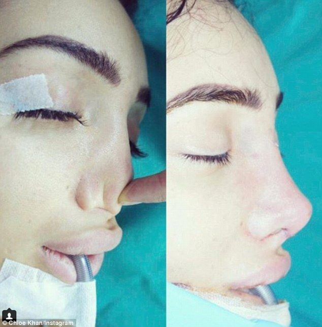 Chloe Khan shocks fans with nose job snaps  Shes no stranger to surgically enhancing her body or face.  But Chloe Khan warned her social media followers of the dangers cosmetic surgery can bring when she shared a graphic before and after post of her botched nose job on Sunday.  The former Celebrity Big Brother star revealed that she had recently undergone a procedure to rebuild her nose using cartilage from her own ear after a surgeon left her with no bones in it.  Transformation: Chloe Khan…