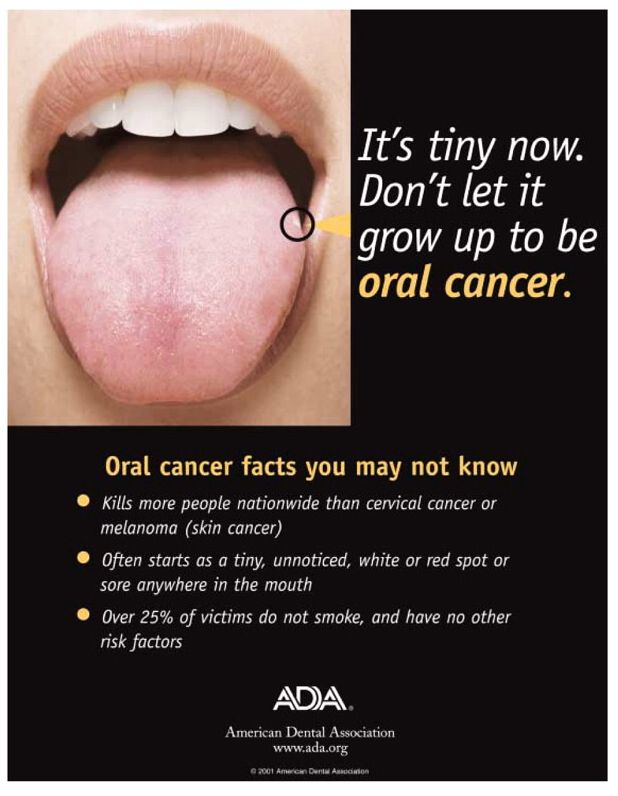 April Is Oral Cancer Awareness Month. Call Us To Learn More About Our  Enhance Oral
