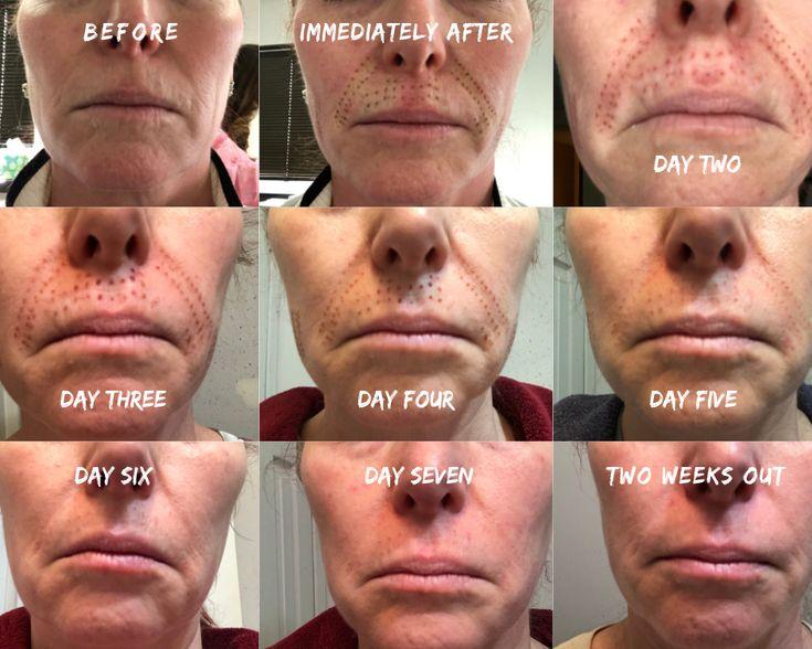 Fibroblast Smile Sagginess Skin Tightening Treatments Facial Fillers Esthetics