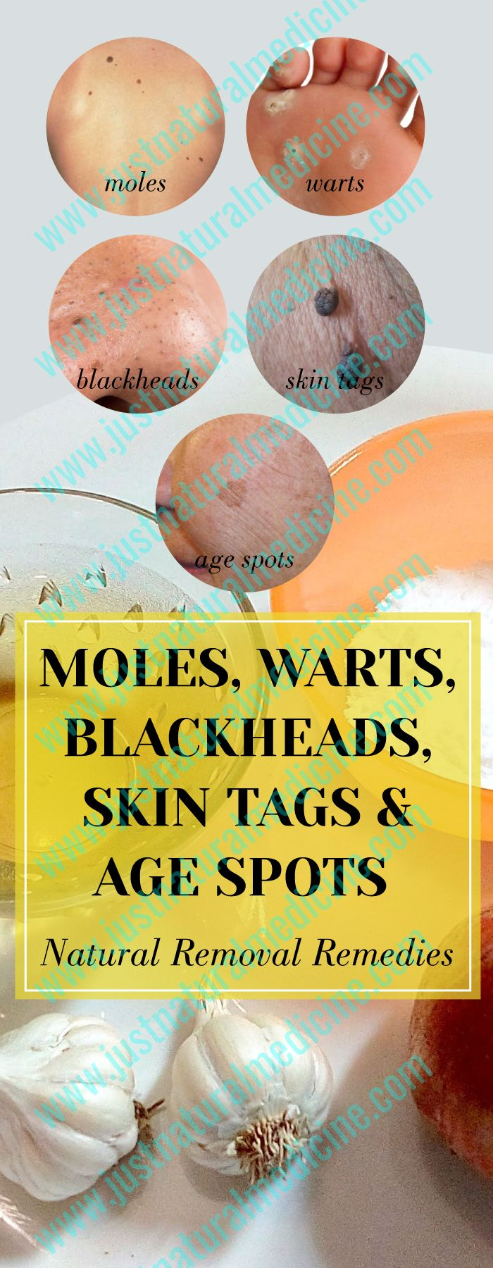 NATURAL WAYS TO DESTROY MOLES, WARTS, BLACKHEADS, SKIN TAGS AND AGE SPOTS!
