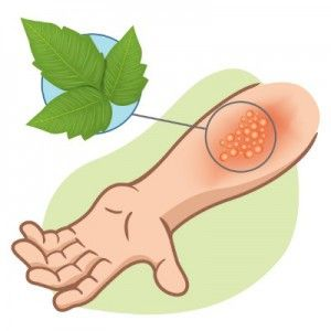 Relieve poison ivy and poison oak.