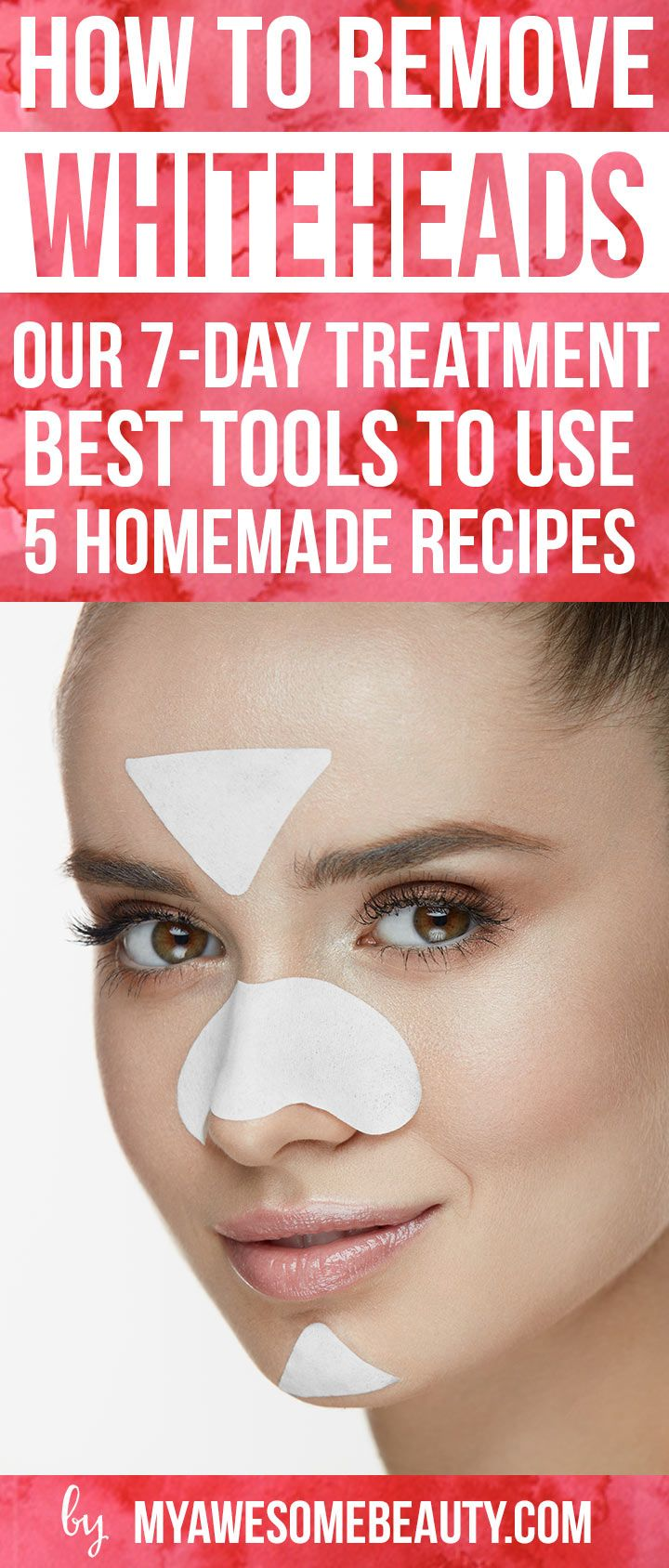 how to avoid blackheads and whiteheads