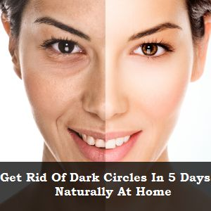 Natural Remedies To Get Rid Of Dark Circles In 5 Days At Home