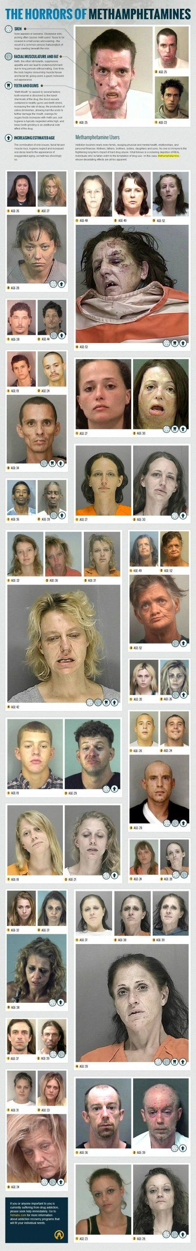 """Eight years ago, the Multnomah County Sheriff's Office launched a campaign called """"the Faces of Meth"""" to address Oregon's methamphetamine problem. The images showed the jarring effects of meth on addicts' faces through before-and-after pictures from their arrest records.  Rehabs.com recently followed suit with this infographic. Warning: these images are disturbing"""