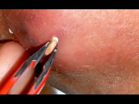 1000+ ideas about Sebaceous Cyst on Pinterest | Eye Cyst ...