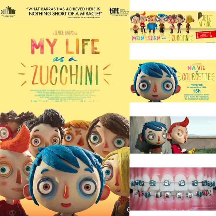 Another 100% fresh movie 🍅  #mylifeasazucchini #maviedecourgette #meinlebenalszucchini  #switzerland #suisse #schweiz #swiss #french #français #autobiographiedunecourgette #dentist #orthodontist #orthodontics #braces #dentiste #dentaire #dentisterie #orthodontie #couleur #couleurs #orthodontiste #bagues #appareil #zahnarzt #kieferorthopädie #zahnspange #farben #farbe #movie #film