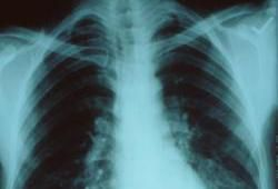 The Facts On What Really Causes Pneumonia