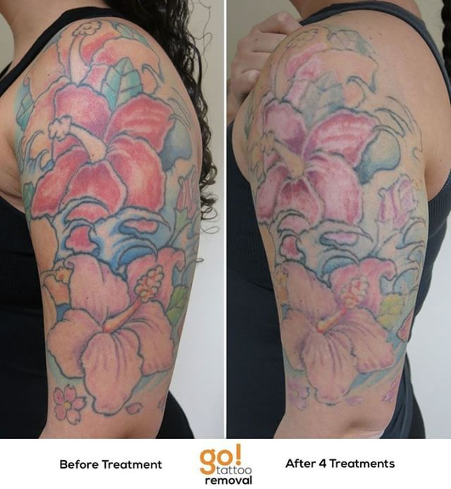 946 best tattoo removal in progress images on pinterest for Tattoo removal healing