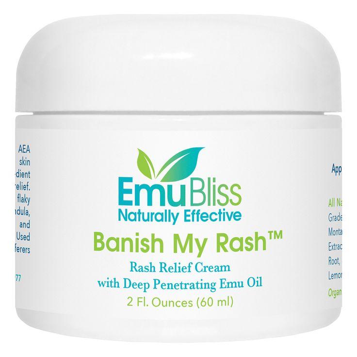 Soothe My Skin Psoriasis Remedies Psoriasis Treatment