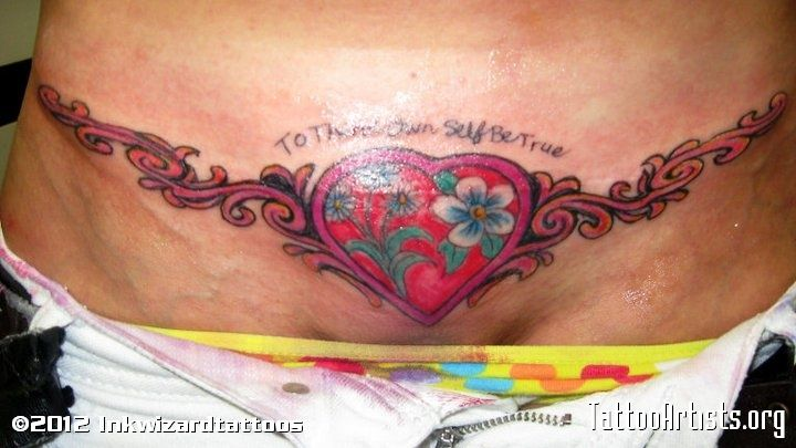 Image detail for tummy tuck scar cover tattoo artists for Tummy tuck cover tattoos