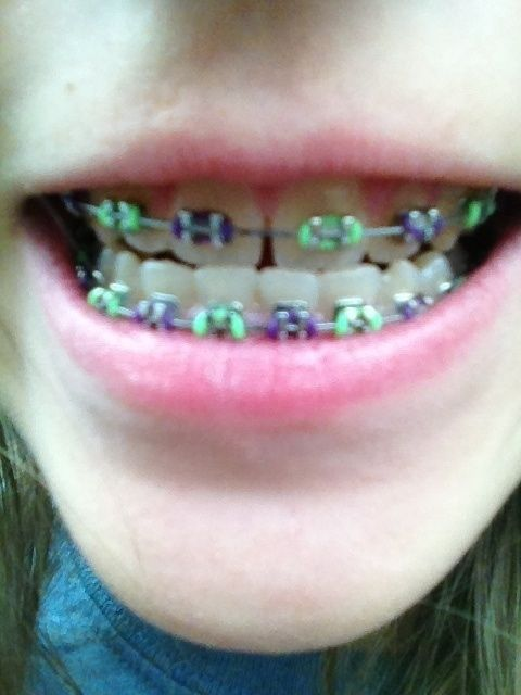 Tween problem: Braces that made it look like your teeth were sprouting fungus.