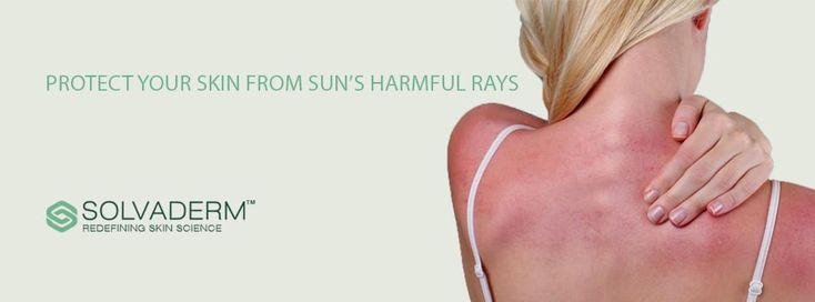 Caring for Sun Poisoning