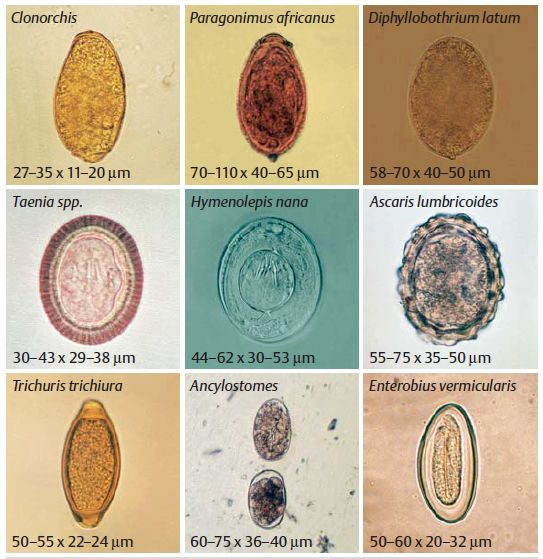 Common parasites in human stools