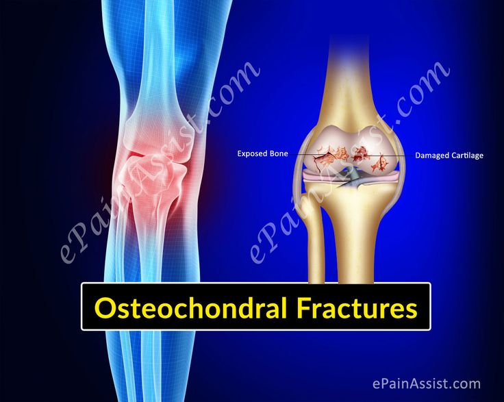 Osteochondral Fractures of Knee or Articular Cartilage Injury Read: http://www.epainassist.com/sports-injuries/knee-injuries/osteochondral-fractures-of-knee-or-articular-cartilage-injury