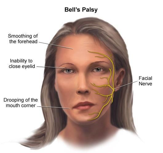 Bell's palsy is an unexplained episode of facial muscle weakness or paralysis that begins suddenly and worsens over three to five days. This condition results from damage to the 7th (facial) cranial nerve, and pain and discomfort usually occurs on one side of the face or head. In Sarcoidosis patients this is very common.