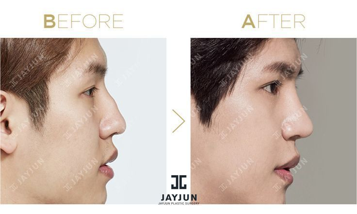 korea cosmetic surgery korean plastic surgery before and after cosmetic surgery …