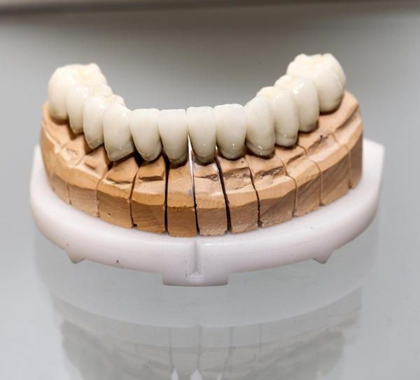 What is the Lifespan of a Dental Crown? ekdentalsurgery.com.au