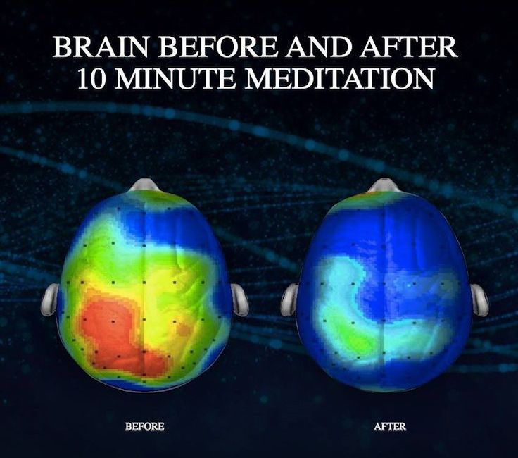 NEUROSCIENTISTS DISCOVER A SONG THAT REDUCES ANXIETY BY 65 PERCENT (LISTEN)